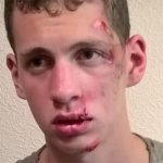 HIT AND RUN VICTIM'S INJURIES REVEALED IN APPEAL PHOTO